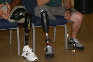 prosthetic sockets
